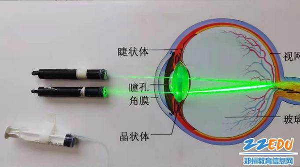 特等奖:水透镜模拟人眼视物仪器